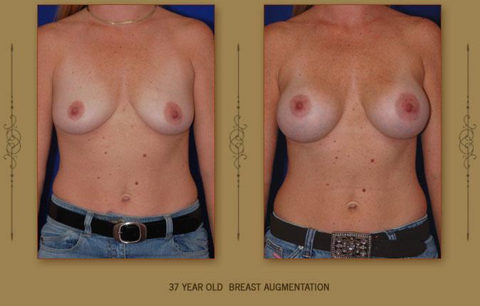 breastaug1a