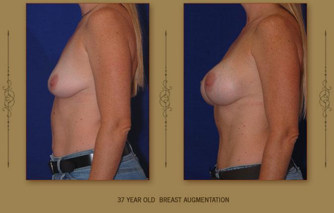 breastaug1b