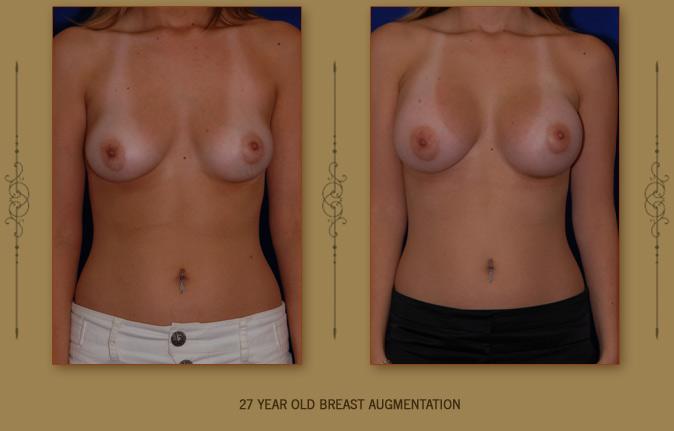 breastaug2a