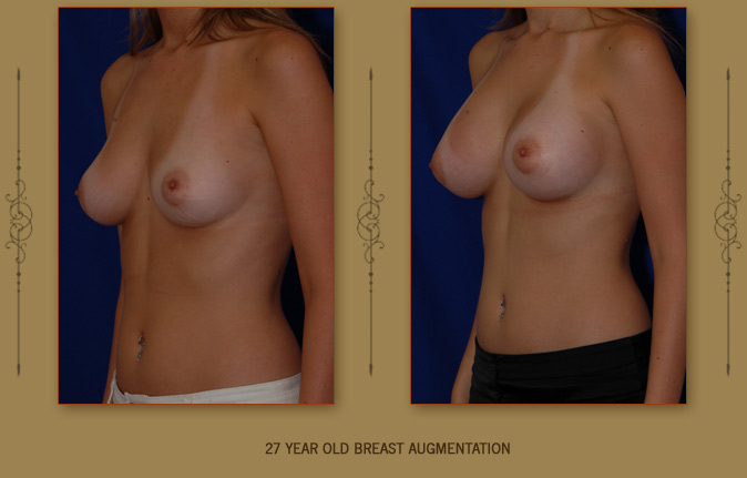 breastaug2b