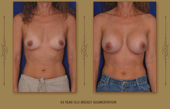breastaug3a
