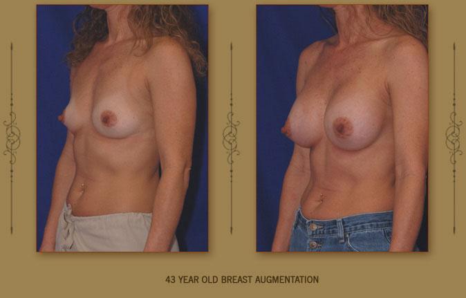 breastaug3b