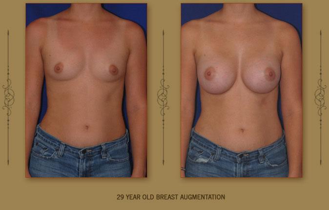 breastaug4a