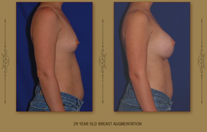 breastaug4b
