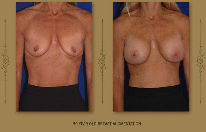 breastaug5a