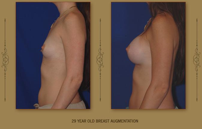 breastaug6b
