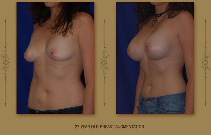 breastaug7b