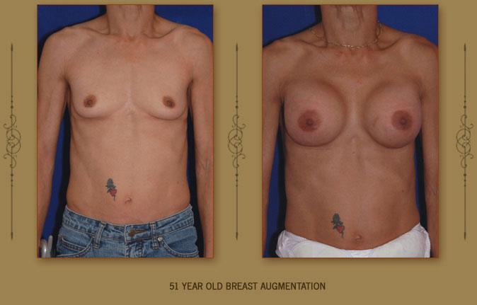 breastaug8a