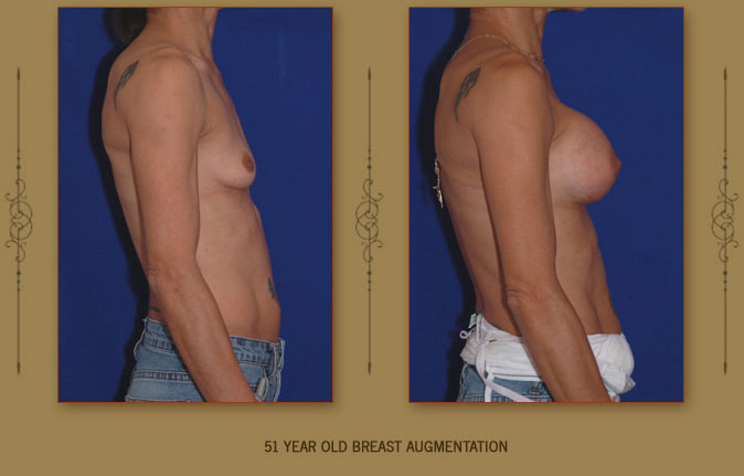 breastaug8b