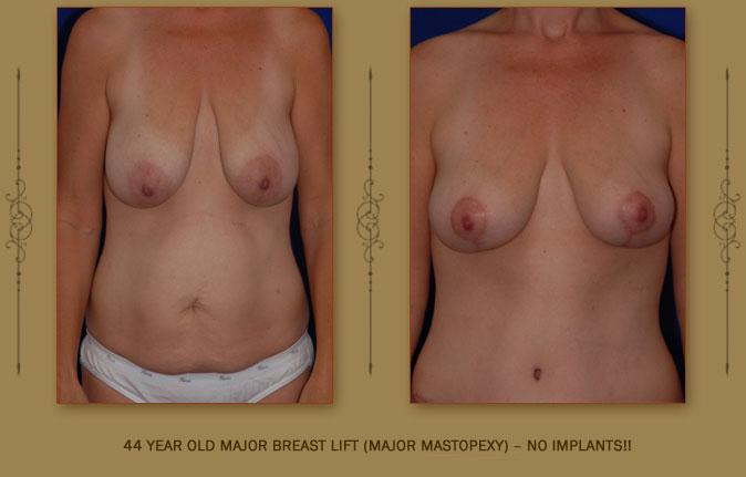 breastliftmastopexy1a