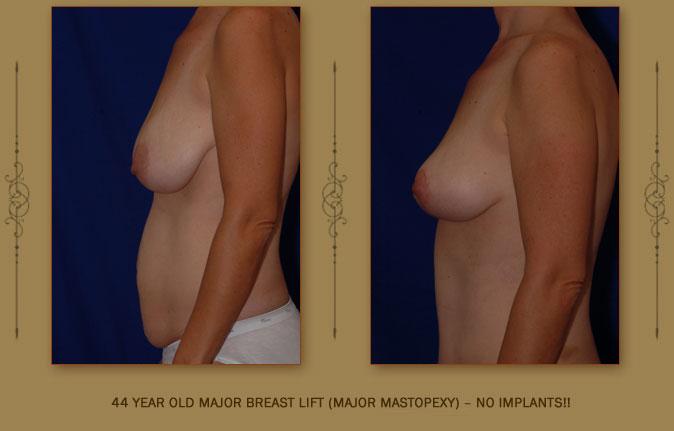 breastliftmastopexy1b