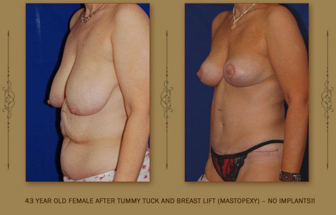 breastliftmastopexy2a