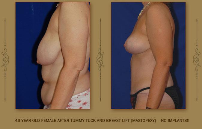 breastliftmastopexy2b