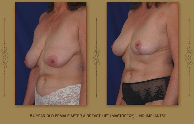 breastliftmastopexy3a
