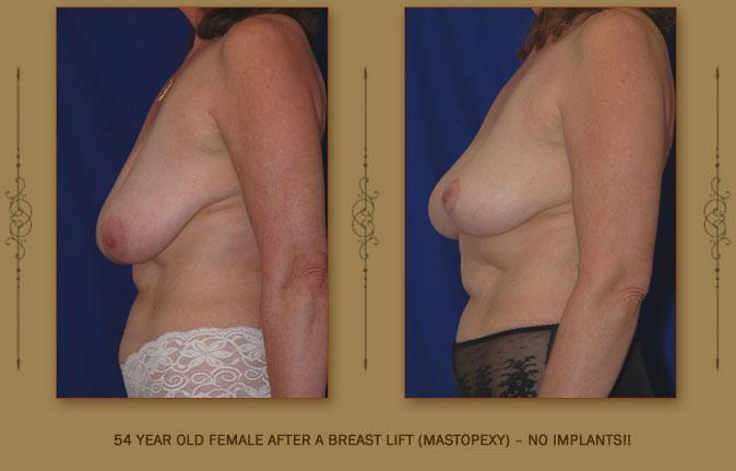 breastliftmastopexy3b
