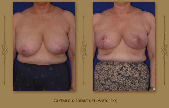breastliftmastopexy4a