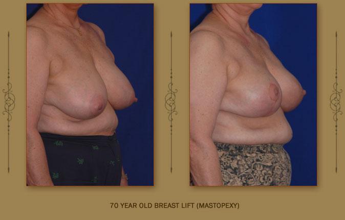 breastliftmastopexy4b