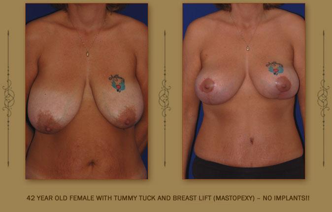 breastliftmastopexy5a