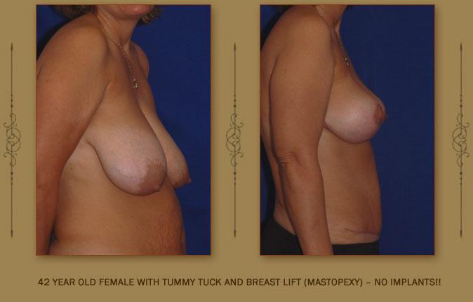 breastliftmastopexy5b