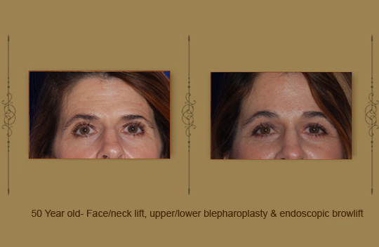 browlift13b