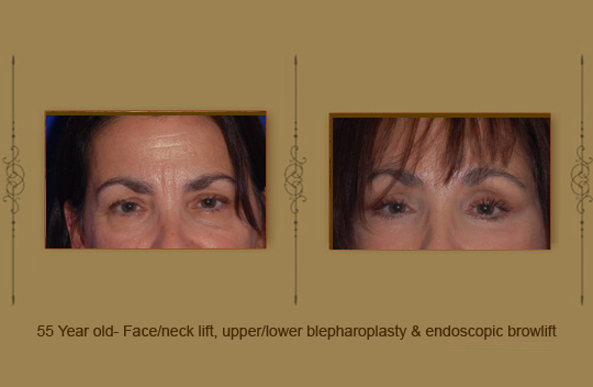 browlift18b