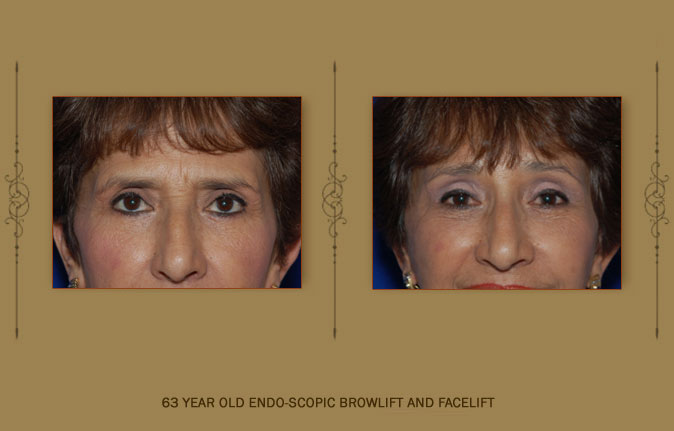 browlift3b
