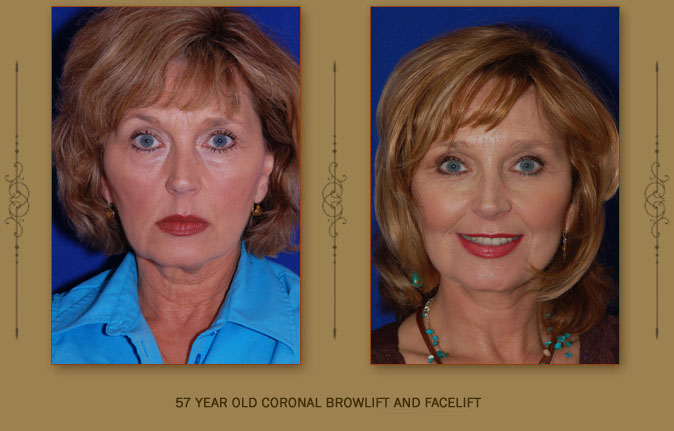 browlift4a