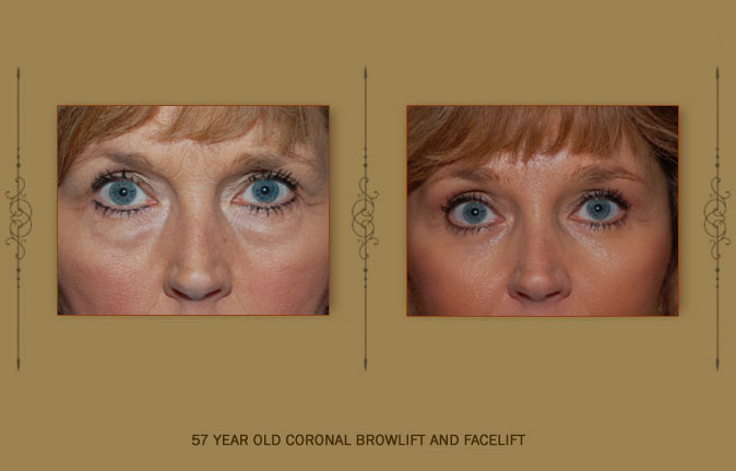 browlift4b