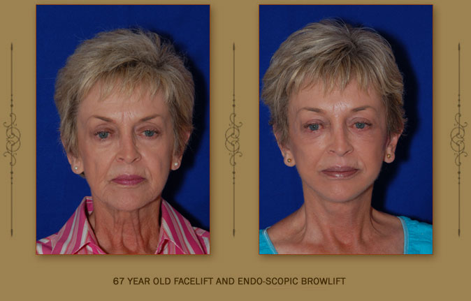 browlift5a