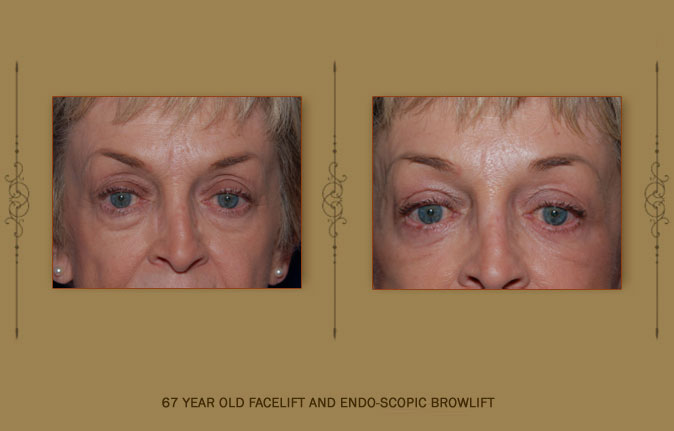 browlift5b