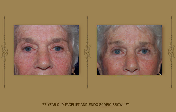browlift6b
